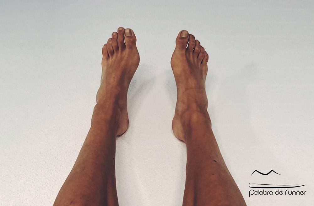 uñas-negras-tratamiento