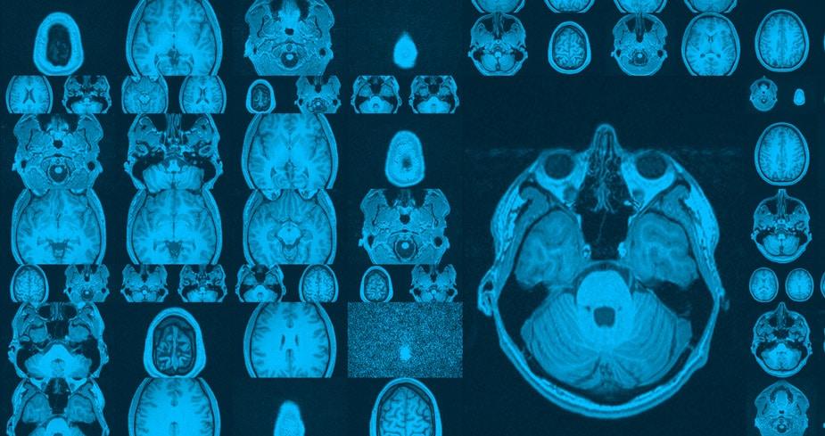 ultramaratones contraen el cerebro