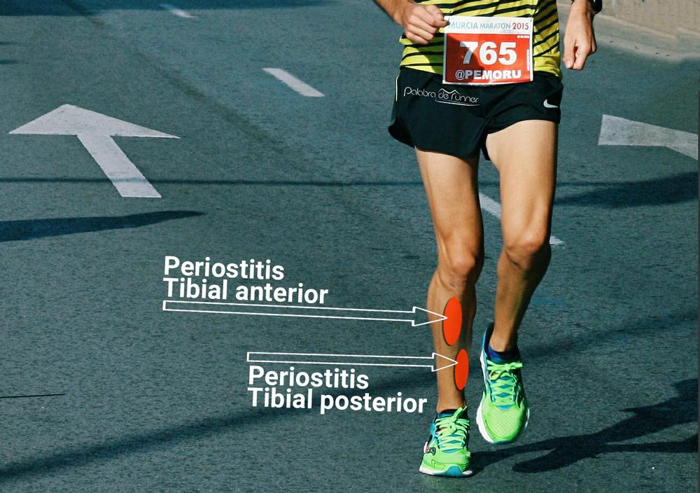 periostitis tibial anterior y posterior