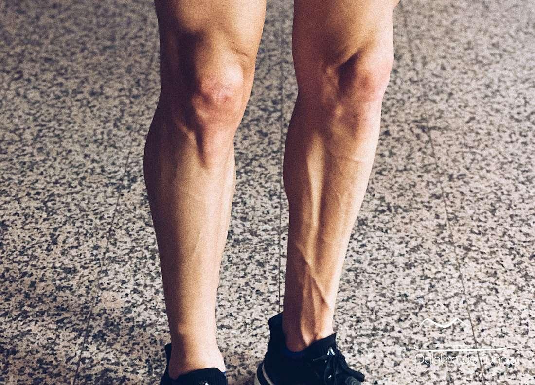 condromalacia-patelar-rotuliana-dolor-rodilla