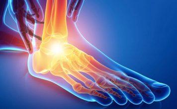 dolor empeine del pie